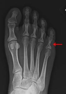 fracture akron podiatrist 1