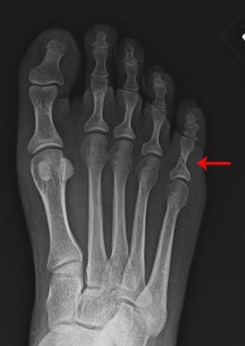 fracture-akron-podiatrist-1.jpg