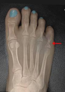 fracture akron podiatrist 3