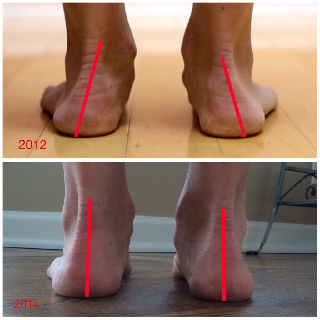 Two Year Long Case Study Demonstrating An Increase In Arch Height From Running In Minimalist Shoes Dr Nick S Running Blog