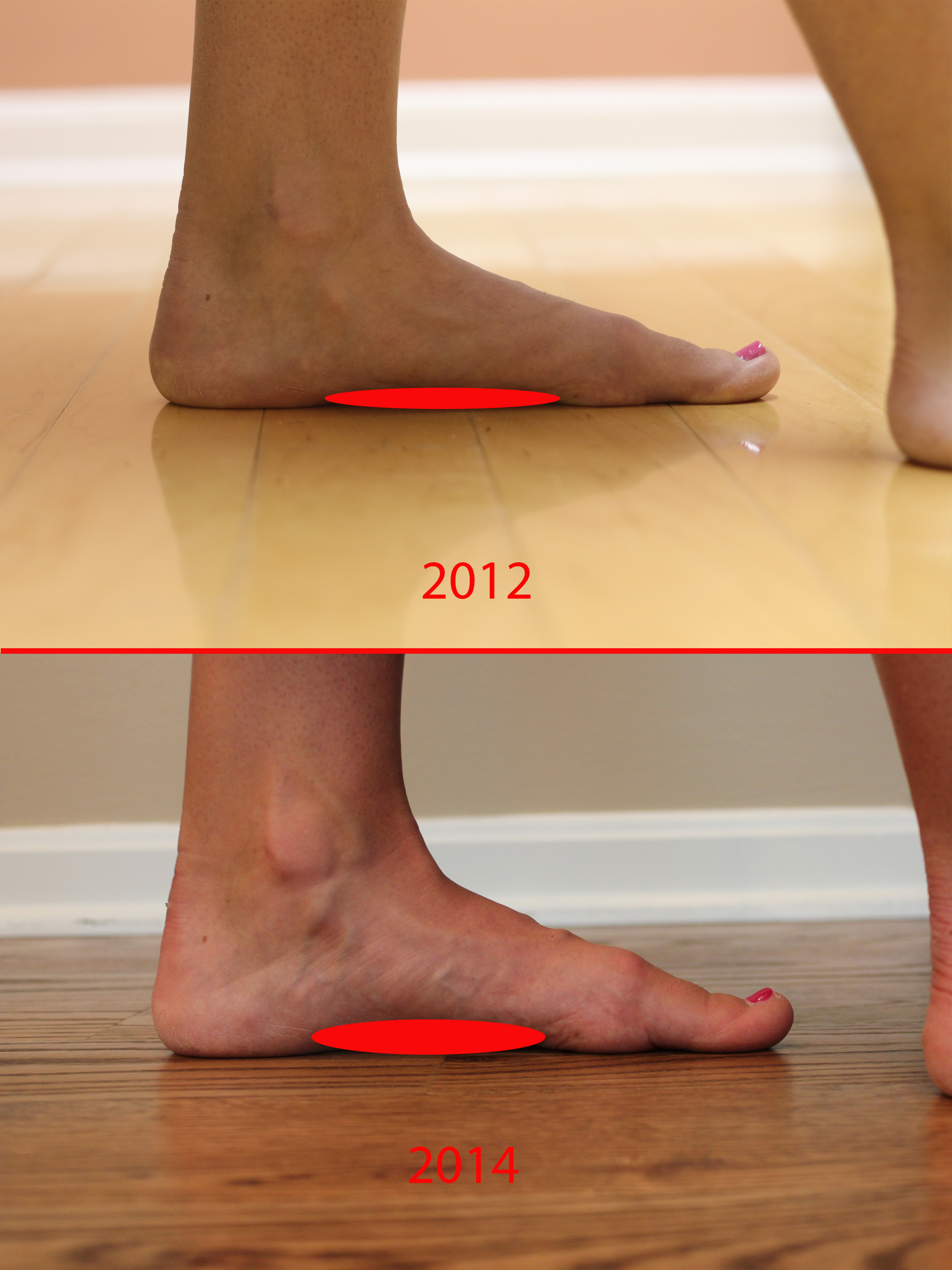 New Images From The Case Study Demonstrating Increase In