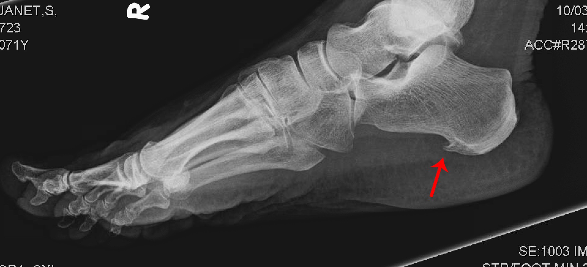 Bone spurs heel pictures